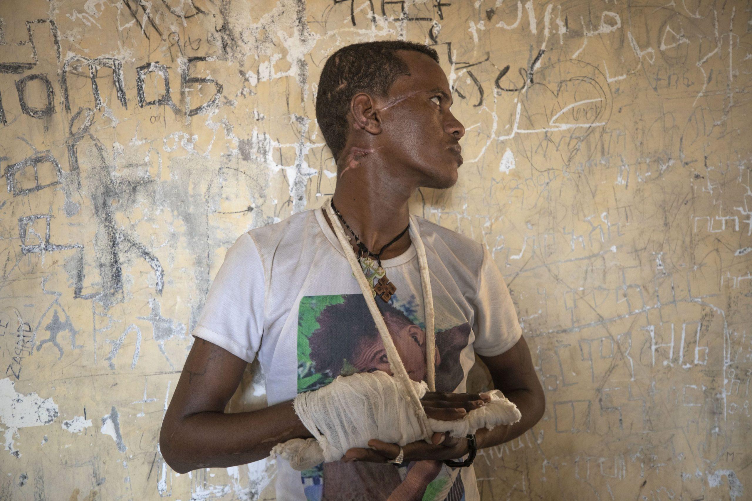 Growing terror in the conflict in Ethiopia